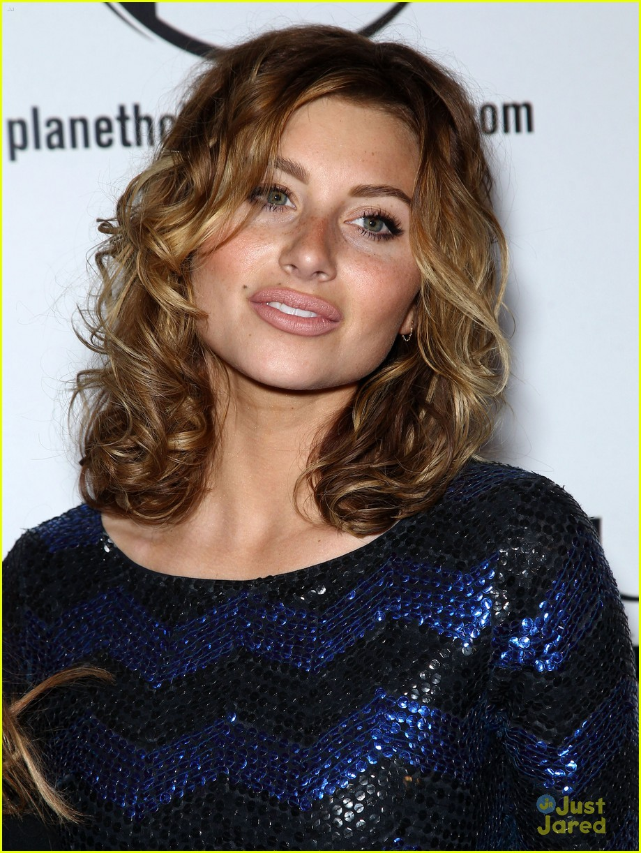 Aly Michalka Lip Injections