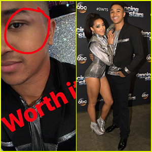 Tinashe Gave Brandon Armstrong A Black Eye After Their Stunning Argentine Tango on 'DWTS'